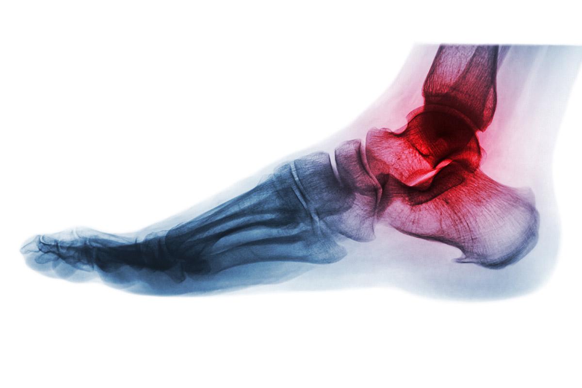 diferencias-entre-artritis-y-artrosis