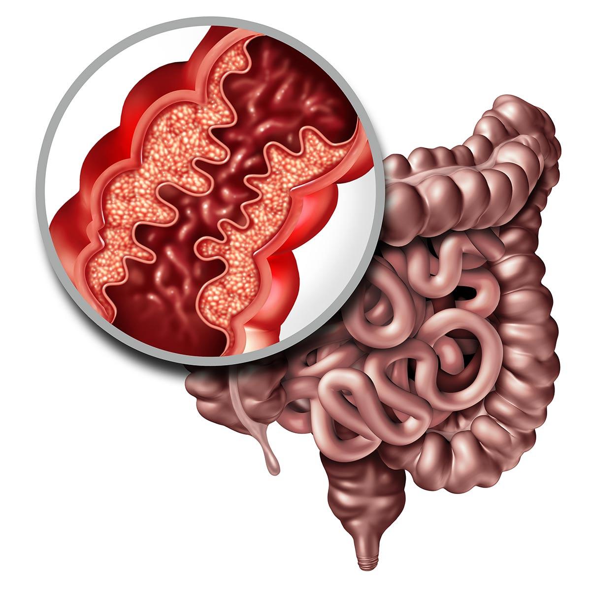 enfermedad-de-crohn-pdf