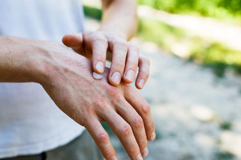 psoriasis-tratamiento